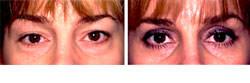 Eyelift