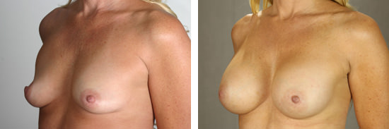 Breast Plastic Surgeon