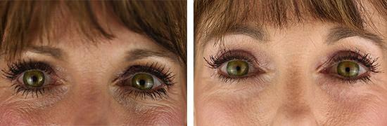 Eyelid Patient