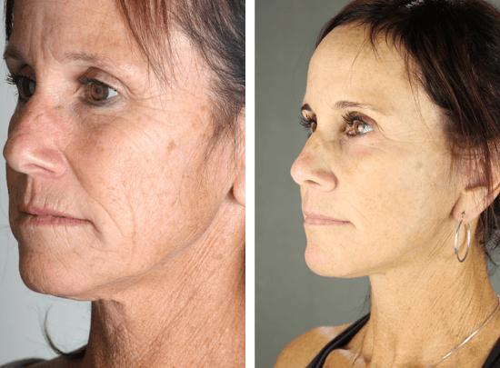 Facelift 22 Temecula Plastic Surgery