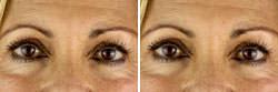 Temecula eyelid surgery