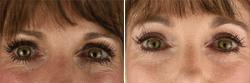 Eyelid Procedures