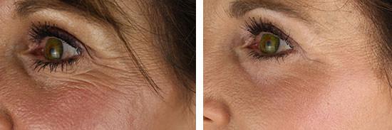 eyelid wrinkle remover