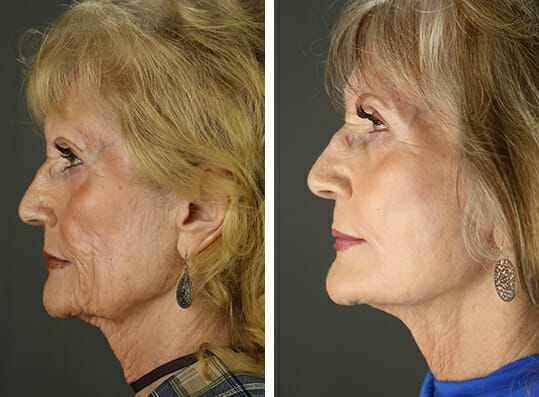 Facelift 24 Temecula Plastic Surgery