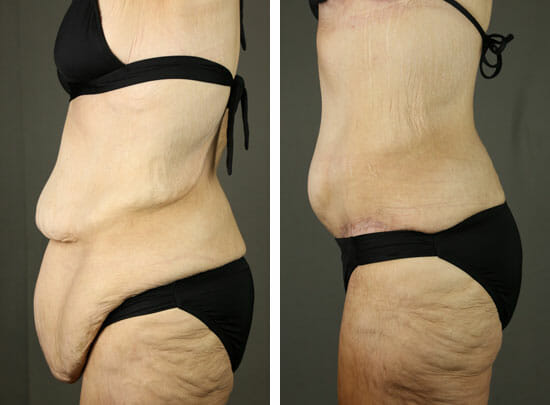 Skin Removal After Weight Loss Pt 1